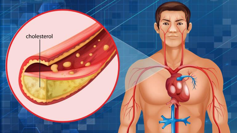 Colesterol en sangre y dieta